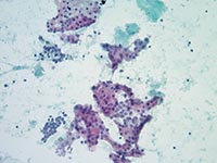 Cytopathology slide image, Cleveland Clinic Laboratories