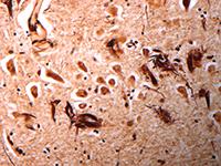 Neuropathology slide image, Cleveland Clinic Laboratories