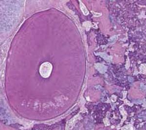 ePathology digital slide image, international digital pathology services, Cleveland Clinic Laboratories