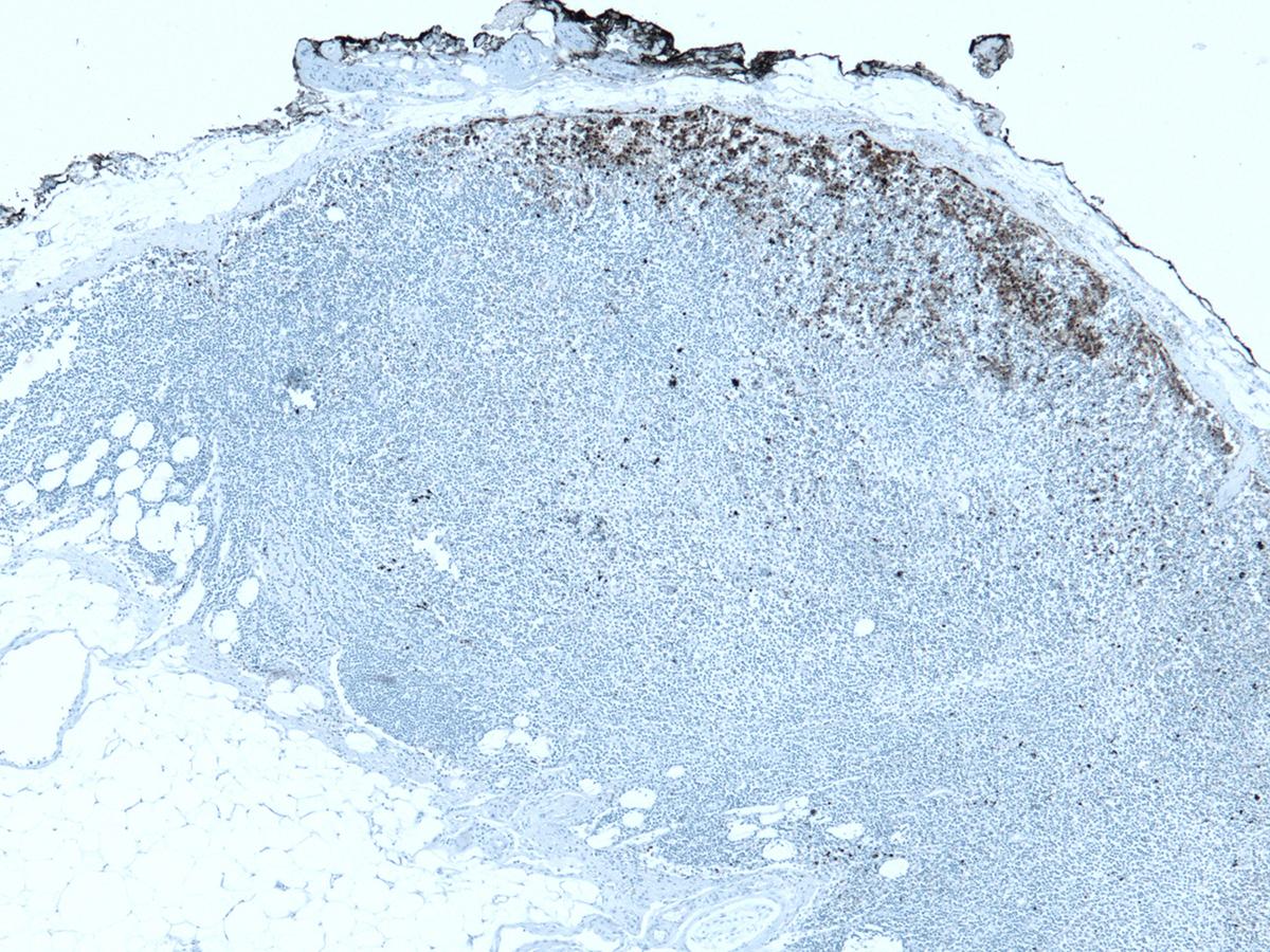 Merkel cell carcinoma histological patterns in sentinel lymph node: non-solid parafollicular