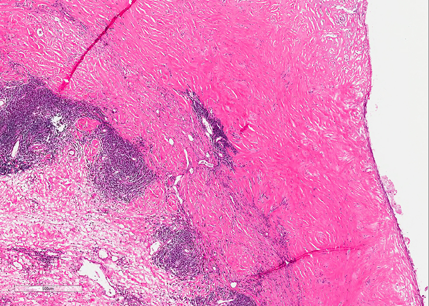 Figure 3. This tissue was adjacent to a failed metal-onmetal hip arthroplasty and shows features typical of aseptic lymphocyte-dominant vasculitis associated lesion (ALVAL). Although not a true vasculitis, it has a laminated appearance with a hyalinized surface and deeper diffuse and perivascular chronic inflammation.